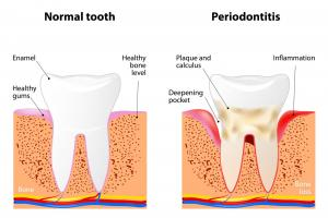 Gum disease and normal tooth